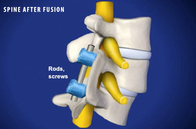 spinal stenosis essay In imaging diagnosis, redundant nerve roots of the cauda equina are characterized by the presence of elongated, enlarged and tortuous nerve roots in close relationship with a high-grade lumbar spinal canal stenosis this is not an independent entity, but it is believed to be a consequence of the chronic compression at the.